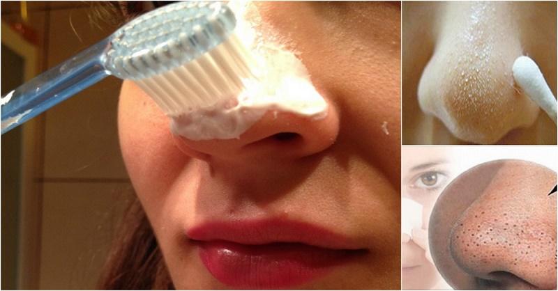 Чем почистить лицо от чёрных точек в домашних условиях