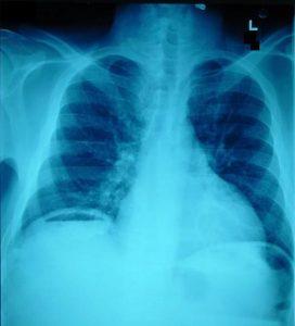 pneumoperitoneum_x-ray-600x662